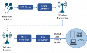 block diagram of Sosaley wireless ECG machine