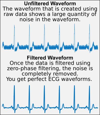 ECG_Noise Filtering
